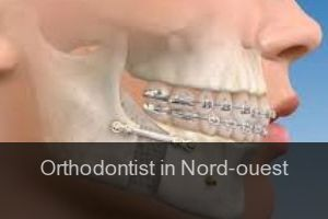Orthodontist in Nord-ouest